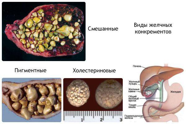 Камень в желчном пузыре причины симптомы