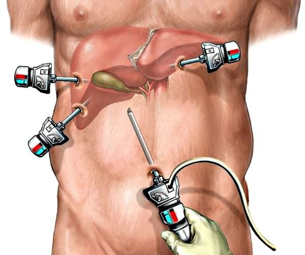 Холецистэктомия Лапароскопическая Диета. Какая нужна диета после операции по удалению желчного пузыря с помощью лапароскопии