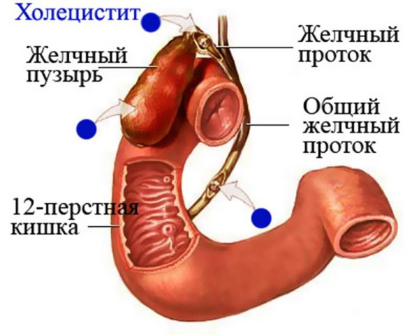 инфекция