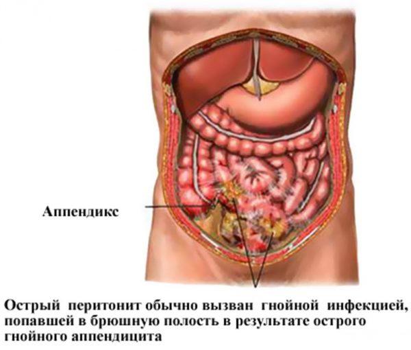 перитонит