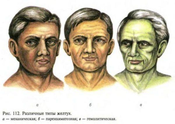 Виды желтух: причины, симптомы, диагностика и лечение